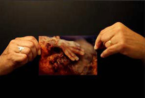 New York Times image of an aborted baby hand.